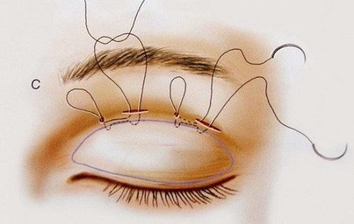 Mắt lá liễu là mắt như thế nào? Nói lên điều gì về tính cách & tương lai? 4