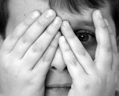 Mắt lé kim là như thế nào và cách trị mắt lé kim tại nhà hiệu quả, tiết kiệm