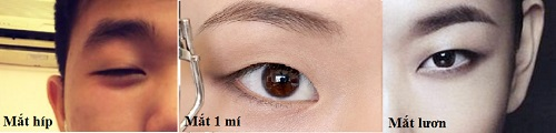 Mắt lươn có phải mắt một mí, nói lên điều gì? Cách khắc phục hiệu quả 1