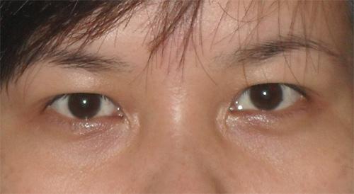 Mắt hai mí ẩn là gì? Hé lộ những BÍ MẬT ẩn chứa đằng sau đôi mắt đó 1