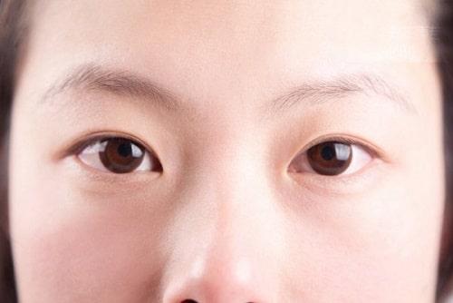 Mắt mí lót là gì, đẹp hay xấu? Con trai, con gái mắt mí lót nói lên điều gì 2