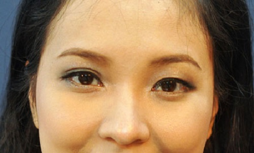Mắt nửa mí là gì? Top 2 cách khắc phục mắt nửa mí hiệu quả & an toàn 3