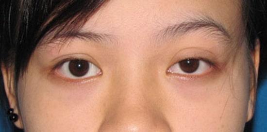 Mắt to mắt nhỏ gọi là gì? Có chữa được không & làm sao để khắc phục 1