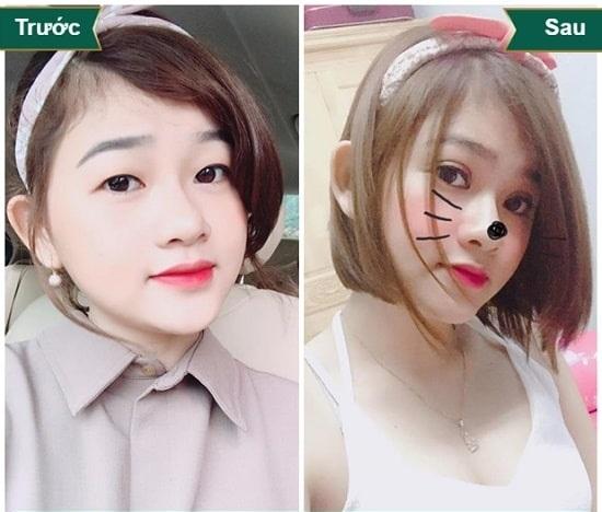 Cắt mí Eye Lift Hàn Quốc là gì? Vì sao lại khiến chị em MÊ MẨN đến thế 8
