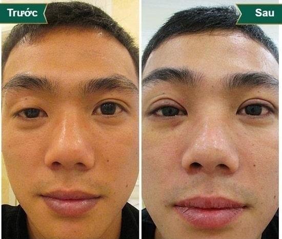 Mắt to mắt nhỏ gọi là gì? Có chữa được không & làm sao để khắc phục 9