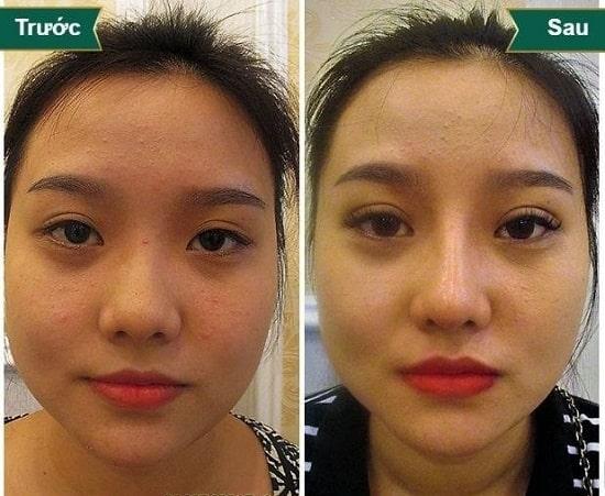 Hình ảnh cắt mí mắt sau 1 tuần, 1 tháng, 2 tháng sẽ thay đổi như thế nào? 2
