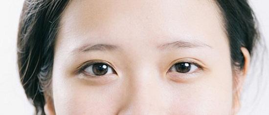 Mắt to mắt nhỏ gọi là gì? Có chữa được không & làm sao để khắc phục 4