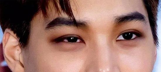 Mắt to mắt nhỏ gọi là gì? Có chữa được không & làm sao để khắc phục 3