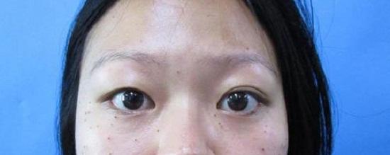Mắt to mắt nhỏ gọi là gì? Có chữa được không & làm sao để khắc phục 2