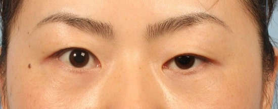 Mắt to mắt nhỏ gọi là gì? Có chữa được không & làm sao để khắc phục 6