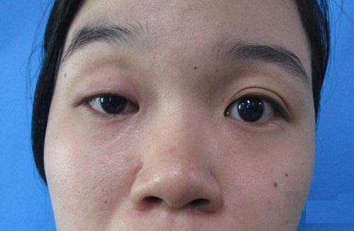 Mắt to mắt nhỏ nhân tướng học HÉ LỘ tính cách & vận số mỗi con người 4