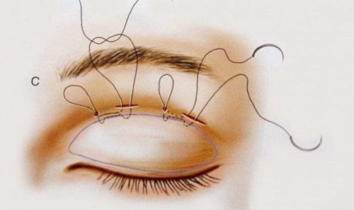Bạn đã biết 3 cách khắc phục mắt to mắt nhỏ không đều chưa?