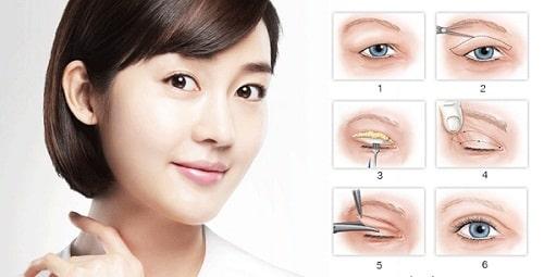 Mắt xếch là gì, đẹp hay xấu? Cách chữa khắc phục mắt xếch hiệu quả 5