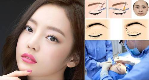 Mắt xếch là gì, đẹp hay xấu? Cách chữa khắc phục mắt xếch hiệu quả 6