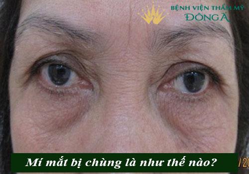 Mí mắt bị chùng - Nguyên nhân & 2 Cách khắc phục Hiệu Quả nhất 1