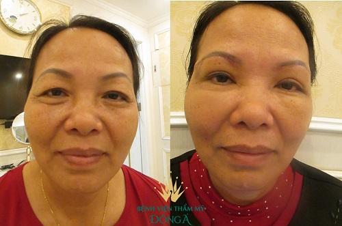 Mí mắt bị chùng - Nguyên nhân & 2 Cách khắc phục Hiệu Quả nhất 6