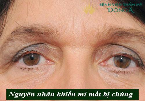 Mí mắt bị chùng - Nguyên nhân & 2 Cách khắc phục Hiệu Quả nhất 2