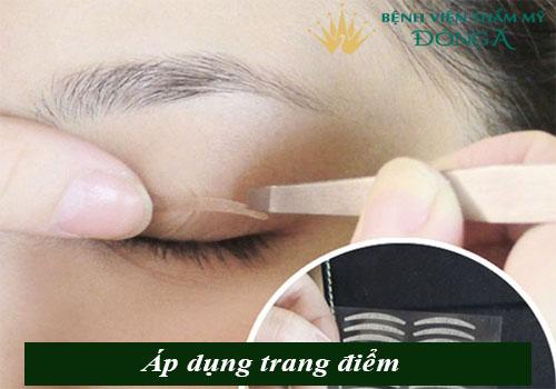 Mí mắt bị chùng - Nguyên nhân & 2 Cách khắc phục Hiệu Quả nhất 3