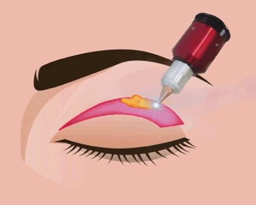 Mí mắt bị chùng - Nguyên nhân & 2 Cách khắc phục Hiệu Quả nhất 4