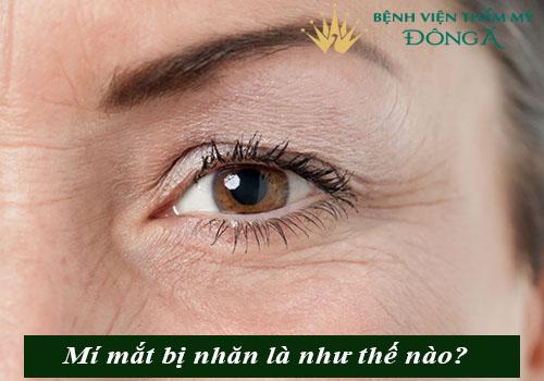 Mí mắt bị nhăn - Nguyên nhân & cách khắc phục HIỆU QUẢ, AN TOÀN 1