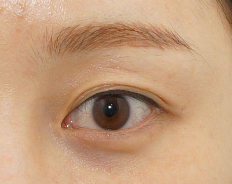 Mí mắt có nhiều nếp gấp - Nguyên nhân & cách khắc phục hiệu quả nhất 2