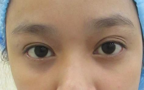 Mí mắt có nhiều nếp gấp - Nguyên nhân & cách khắc phục hiệu quả nhất 1