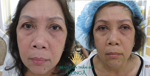 Mí mắt có nhiều nếp gấp - Nguyên nhân & cách khắc phục hiệu quả nhất 8
