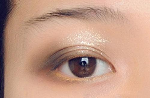 Mí mắt có nhiều nếp gấp - Nguyên nhân & cách khắc phục hiệu quả nhất 4