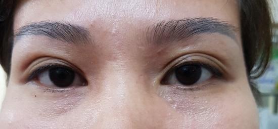 Mí mắt có nhiều nếp gấp - Nguyên nhân & cách khắc phục hiệu quả nhất 5
