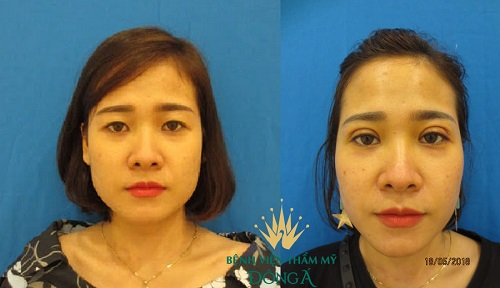 2 Cách khắc phục MÍ MẮT QUÁ TO hiệu quả & an toàn cho mắt đều đẹp 5