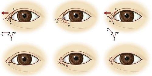 Mở góc mắt bao lâu thì lành? 3 Yếu tố giúp mắt nhanh hồi phục 2