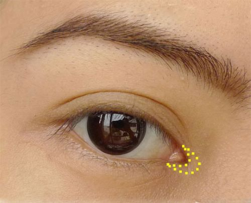 Mở góc mắt có nguy hiểm không? Bác sĩ thẩm mỹ giải đáp 2