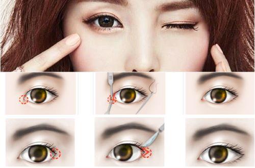 Mở góc mắt có nguy hiểm không? Bác sĩ thẩm mỹ giải đáp 6