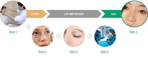 Mỡ mắt trên là tình trạng gì? Công nghệ hút mỡ mắt trên Hot hiện nay 8