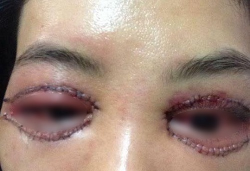 Mở rộng đuôi mắt webtretho - Review của chị em về các vấn đề liên quan 8