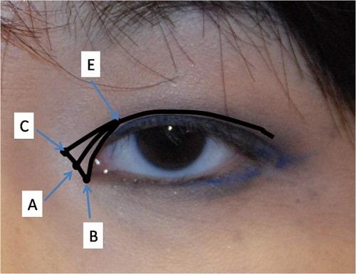 Phẫu thuật mở rộng góc mắt giúp đôi mắt Cân Đối & To Đẹp 7
