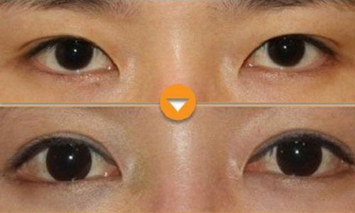 Phẫu thuật mở rộng góc mắt giúp đôi mắt Cân Đối & To Đẹp 5