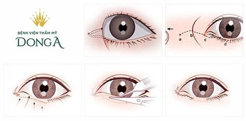 Phẫu thuật mở rộng góc mắt trong/ngoài Tạo mắt to đẹp Tươi trẻ An toàn 2