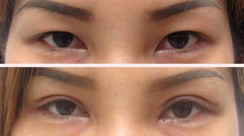 Phẫu thuật mở rộng góc mắt giúp đôi mắt Cân Đối & To Đẹp 4