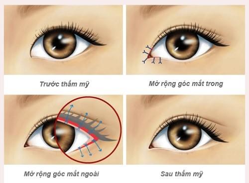 Phẫu thuật mở rộng góc mắt giá bao nhiêu tiền? Hiệu quả mang lại là gì? 2
