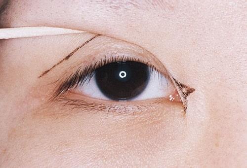Phẫu thuật mở rộng góc mắt giá bao nhiêu tiền? Hiệu quả mang lại là gì? 1
