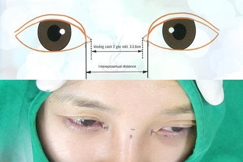Phẫu thuật mở rộng góc mắt giúp đôi mắt Cân Đối & To Đẹp 6