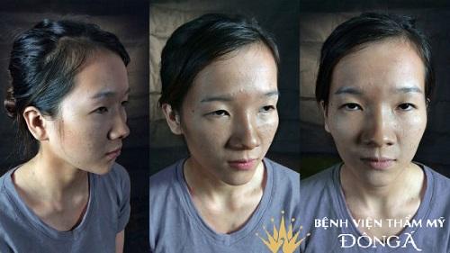 Phẫu thuật mở rộng góc mắt giúp đôi mắt Cân Đối & To Đẹp 3