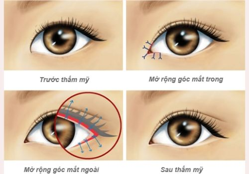 Mở rộng góc mắt là gì? Phẫu thuật mở rộng góc mắt Hiệu Quả 1