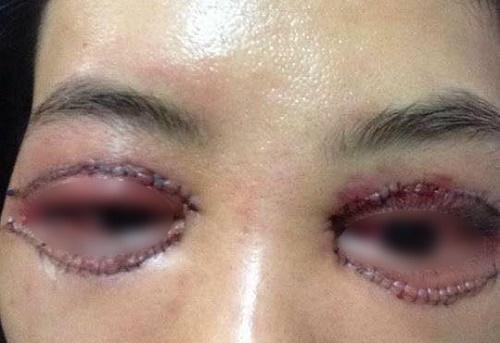 Phẫu thuật nâng mí mắt bị sụp cho mắt To Đẹp - Tươi Trẻ 3