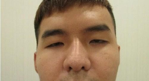 Phẫu thuật nâng mí mắt bị sụp cho mắt To Đẹp - Tươi Trẻ 1