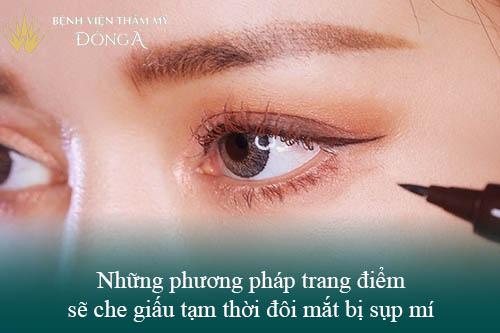 3 Cách nâng mí mắt không cần phẫu thuật Đơn Giản/Hiệu Quả tại nhà 5