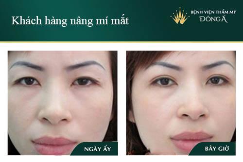3 Cách nâng mí mắt không cần phẫu thuật Đơn Giản/Hiệu Quả tại nhà 7