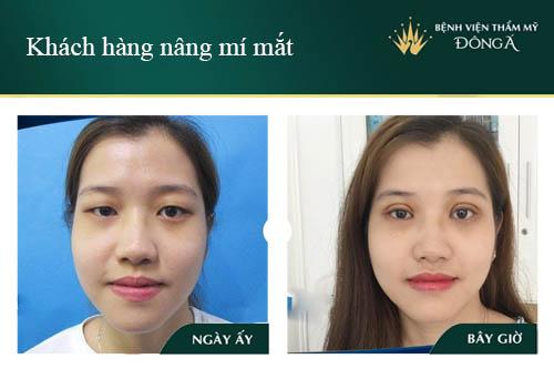 3 Cách nâng mí mắt không cần phẫu thuật Đơn Giản/Hiệu Quả tại nhà 8