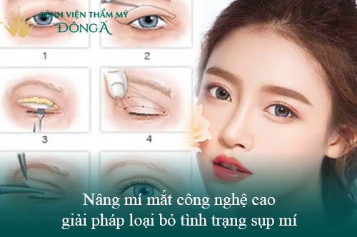 3 Cách nâng mí mắt không cần phẫu thuật Đơn Giản/Hiệu Quả tại nhà 6